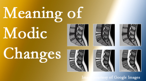 Yorkville Chiropractic and Wellness Centre sees many back pain and neck pain patients who bring their MRIs with them to the office. Modic changes are often seen.