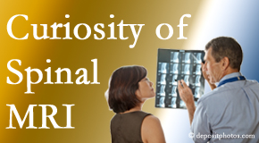 Toronto MRIs for spinal stenosis may be revealing…or confusing.