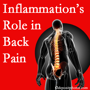 The role of inflammation in Toronto back pain is real. Chiropractic care can help.