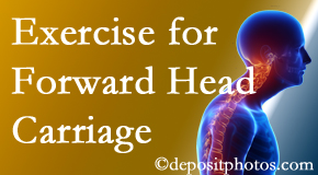Toronto chiropractic treatment of forward head carriage is two-fold: manipulation and exercise.