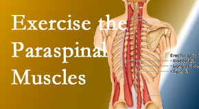 Yorkville Chiropractic and Wellness Centre explains the importance of paraspinal muscles and their strength for Toronto back pain relief.