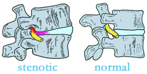Toronto stenotic and normal spinal discs