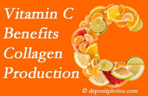 Toronto chiropractic shares tips on nutrition like vitamin C for boosting collagen production that decreases in musculoskeletal conditions.