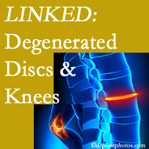 Degenerated discs and degenerated knees are not such unlikely companions. They are seen to be related. Toronto patients with a loss of disc height due to disc degeneration often also have knee pain related to degeneration.