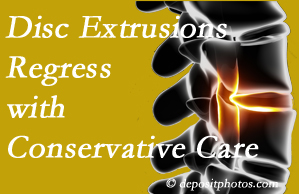 Toronto chiropractic care of extruded discs may benefit regression of them and improve your quality of life.
