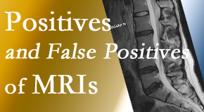 Yorkville Chiropractic and Wellness Centre carefully chooses when and if MRI images are needed to guide the Toronto chiropractic treatment plan.
